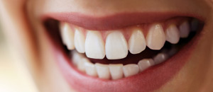Teeth Whitening Dundas